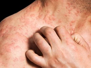 Eczema - https://www drgyanhomoeo com/
